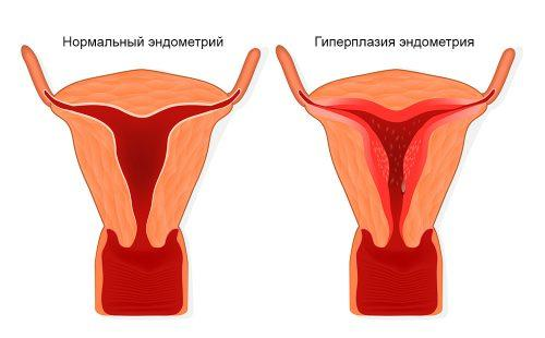 Схема разрастания ткани эндометрия