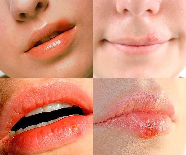 Как выглядит герпес на губах