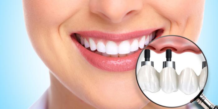 Что такое зубные имплантаты?